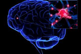 آیا سکته مغزی قابل پیشگیری است؟