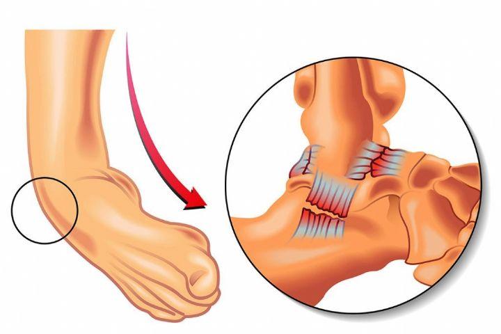 عمده صدمات مچ پا از نوع پیچ خوردگی است/  دوره بازتوانی را می توان با بروز آسیب آغاز کرد