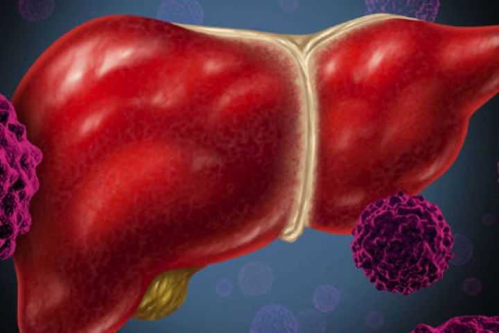 تغذیه مناسب برای پیشگیری از هپاتیت