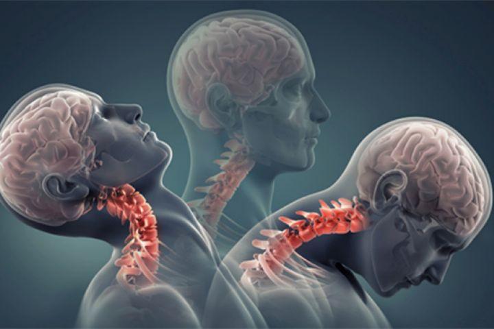 """علل شایع دردهای گردن در """"مجله پزشکی"""""""