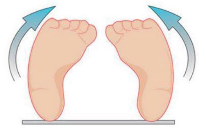 بررسی علل بروز ناهنجاری پا در کودکان