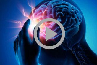 عوامل تشدید کننده و کاهنده خطر بروز سکته های مغزی کدامند؟