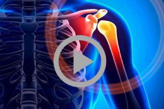 روشهای کنترل درد شانه