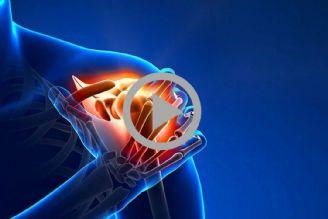بررسی بیماری فیبرومیالژی