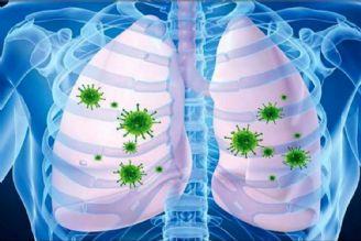 علائم هشداردهنده درگیری ریه در مبتلایان به كرونا