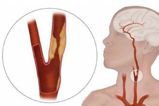 علل سكته مغزی و ارتباط آن با شریانهای گردن