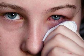 راهكار طب سنتی برای درمان قرمزی چشم و حساسیت در برابر  آفتاب