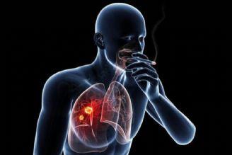 استعمال دخانیات بیش از 80% در بروز سرطان ریه نقش دارد