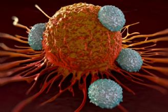 سرطان چگونه به وجود می آید؟ (آسیب شناسی سلولی و روشهای پیشگیری)