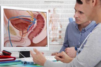 سرطان پروستات چیست و چه علائمی دارد؟