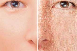 دلایل خشكی پوست با افزایش سن و روشهای پیشگیری