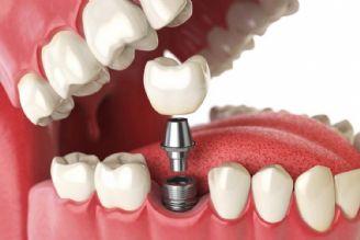 از نخستین پیشگامان ایمپلنت دندانی در كشور هستیم