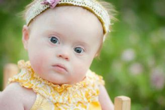 چالشهای غربالگری سندروم داون در مراقبتهای بارداری؛ فرصتها و تهدیدها
